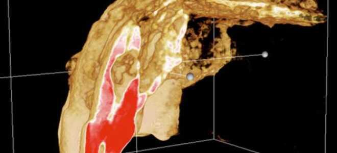 Правильная диагностика в эндодонтии.