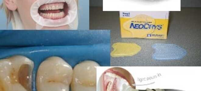 Как обеспечить 100% сухое операционное поле в стоматологии.