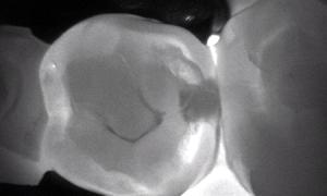 Диагностика кариеса с точностью рентгенографии.