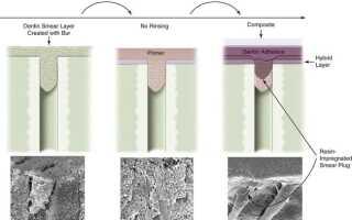 Адгезивы 6 и 7-го поколений. Механизм взаимодействия с тканями зубов.