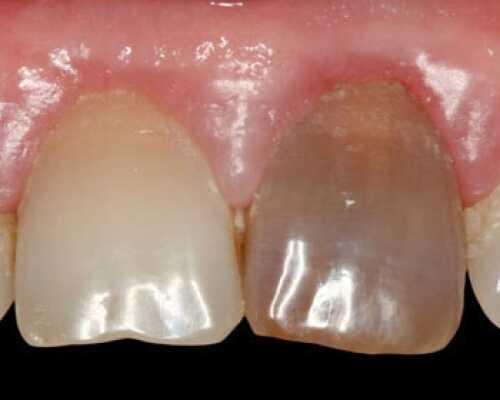 Внутрикоронковое отбеливание зубов, эндоотбеливание.
