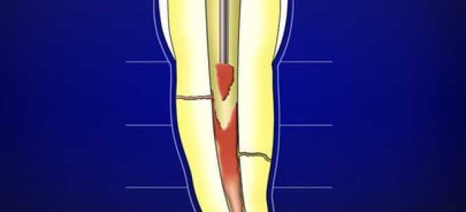 Латеральная и вертикальная конденсация гуттаперчи — как основные методы и техники пломбирования каналов.
