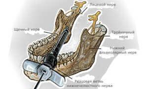 Методы обезболивания в стоматологии.