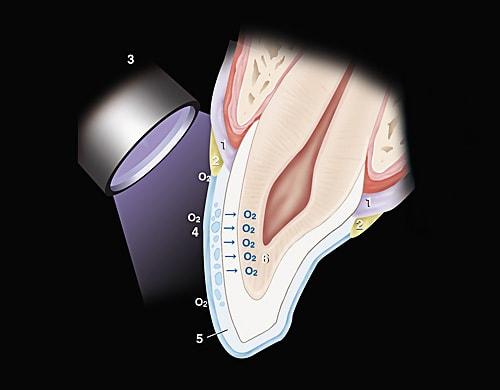Отбеливание зубов под компрессией
