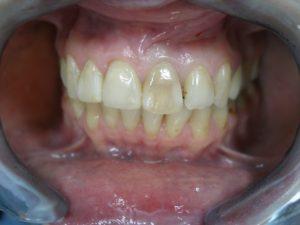 Окрашивание зуба эндометазоном