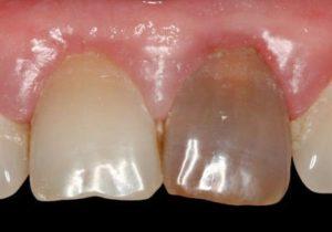 резорцин формалиновый зуб