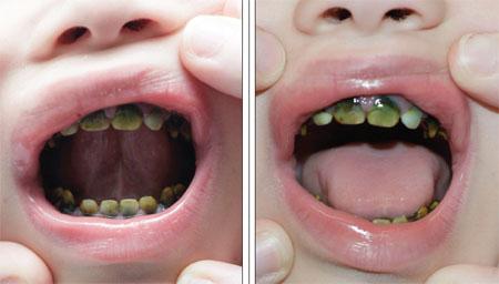 Зубы при гипербилирубинемии