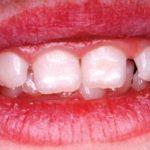 Гипоплазия эмали слабой степени