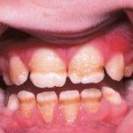 Гипоплазия эмали тяжелой степени