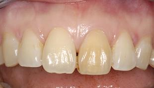 Желтое окрашивание зуба при травме