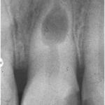 Резорбция корня зуба рентгенограмма