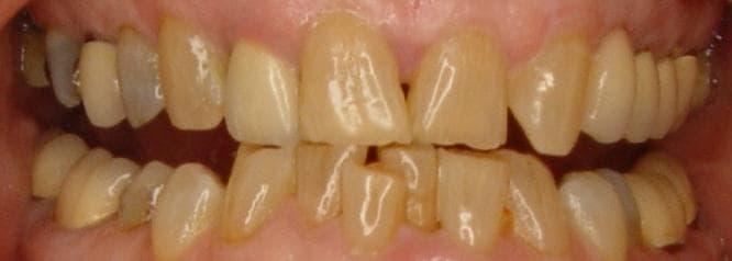 возрастное изменение цвета зубов