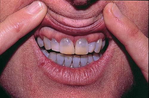 Миноциклин окрашивание зубов