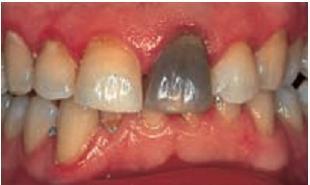 цвет зуба при некрозе пульпы