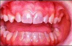 Зубы при несовершенном остеогенезе