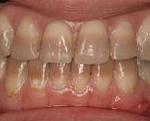 зубы Тетрациклин