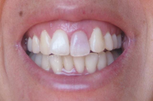 Кровоизлияние внутри зуба при травме