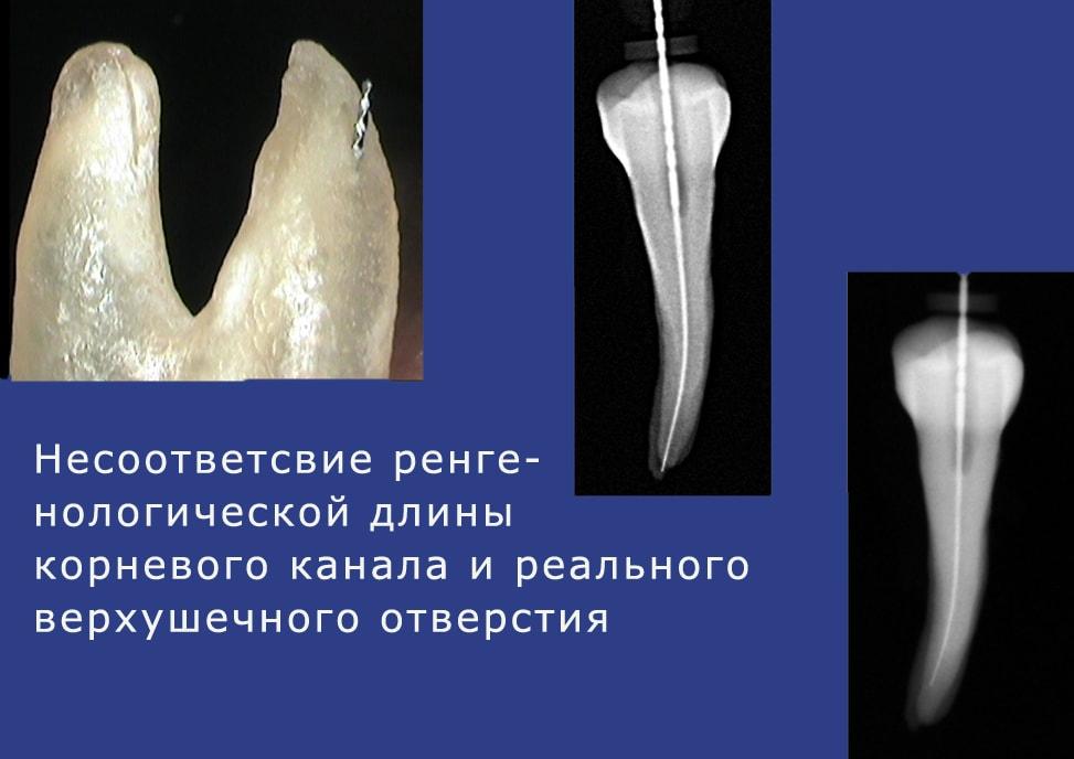 реальная и рентгенологическая верхушка корня