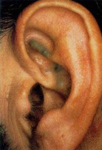 алкаптонурия окрашивание ушной раковины