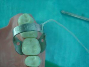установка кламмера на зуб без латексного платка