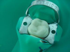установка кламмера на зуб