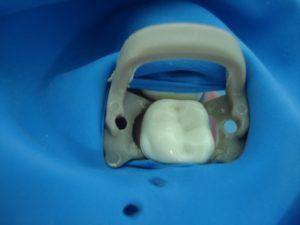 установка кламмера на зуб с натянутой пластиной коффердама