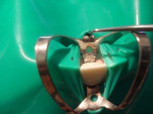 снятие латексной пластины с кламмера бабочки