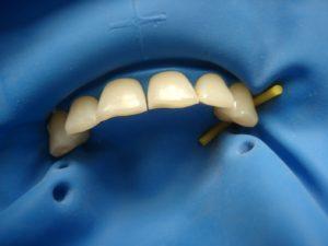 наложение коффердама на фронтальные зубы